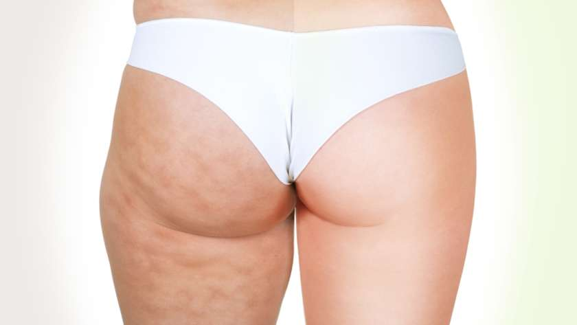 Éliminer la cellulite